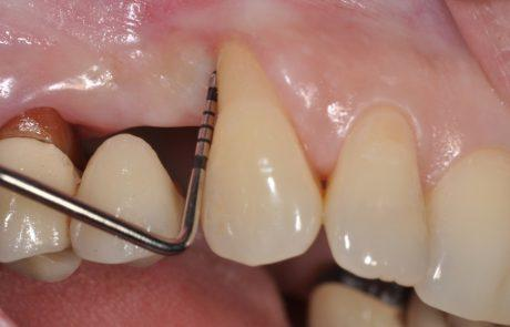 Pre-surgical probing reveals a deep intrabony defect on the distal aspect of the upper canine