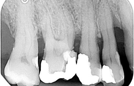 Pre-operative radiograph. Deep intrabony defect on the mesial aspect of tooth 14