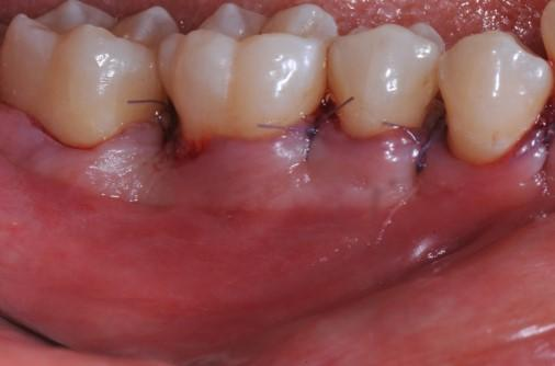 Coronal advancement of the flap and suturing to achieve primary wound closure. Buccal view