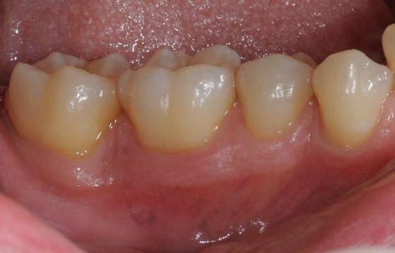Clinical situation 12 months post-operative. Buccal view
