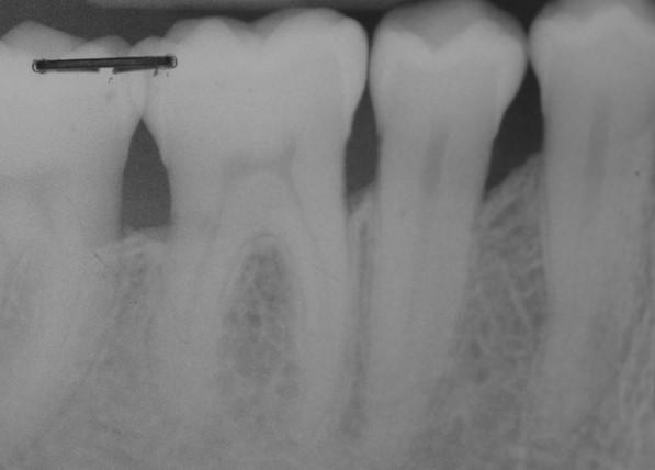 Long term follow up: radiographic situation six years post-operative
