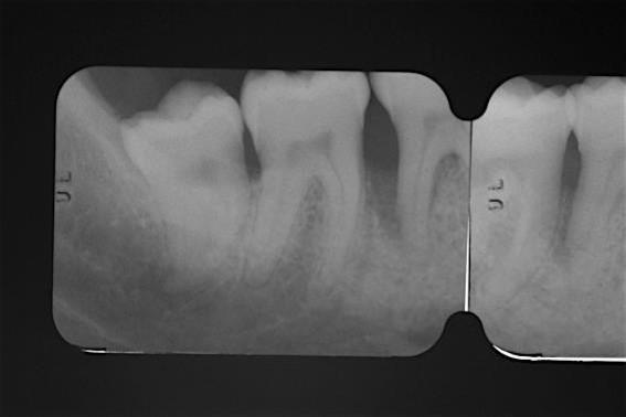 Pre-operative radiograph. Deep intrabony defect visible on the distal aspect of tooth 46