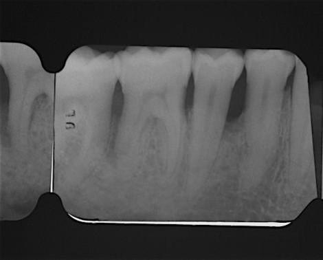 Pre-operative radiograph. Deep intrabony defect visible mesially to tooth 45
