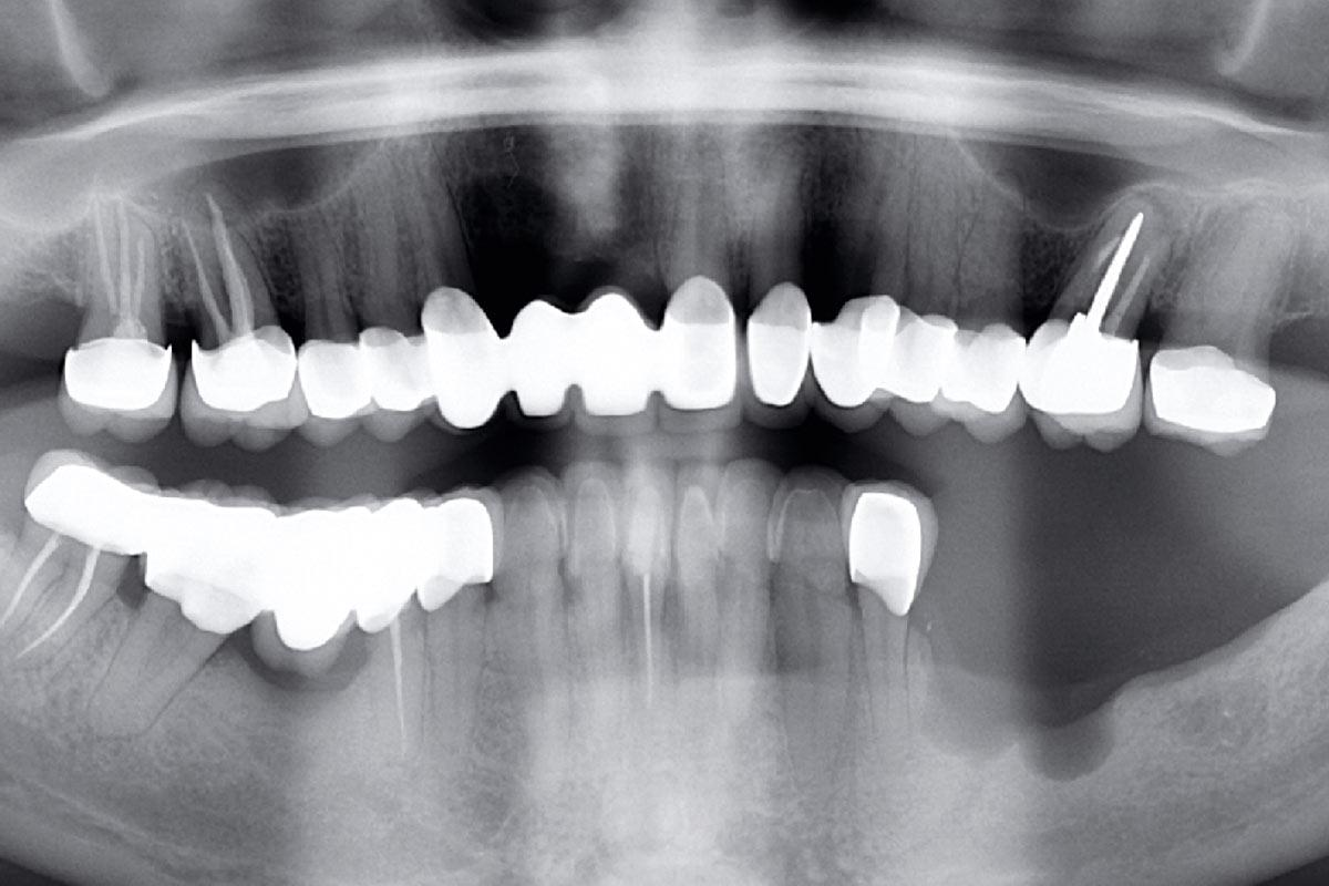 Bone defect after tooth loss due to periodontitis