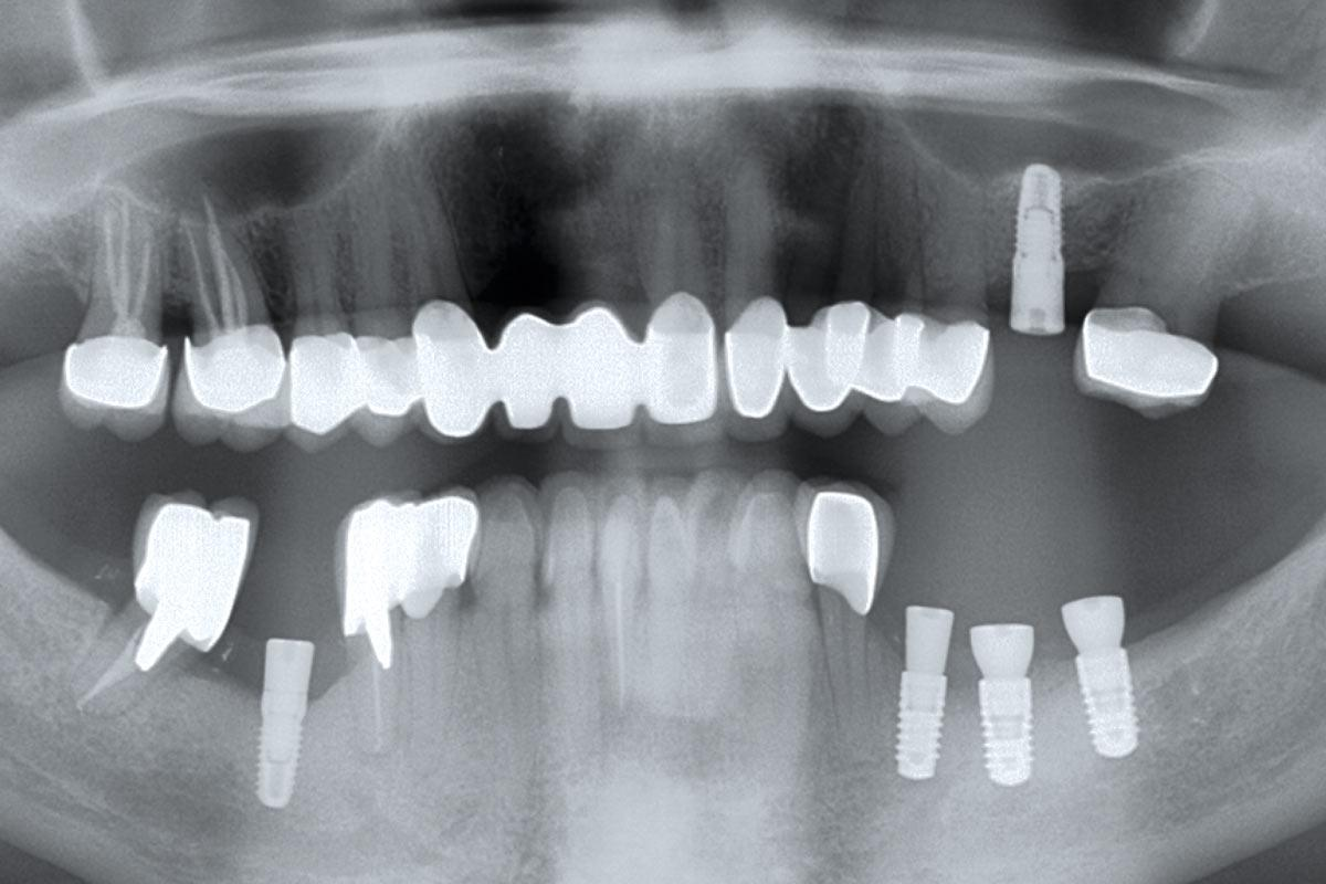Radiographic control after uncovering