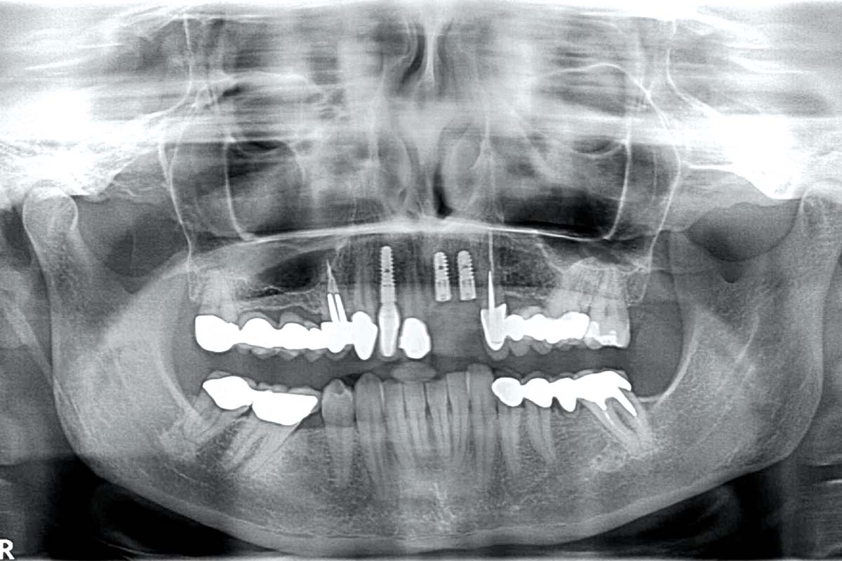 1- Radiological situation after re-entry