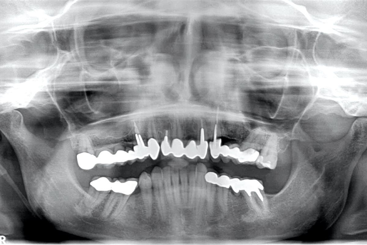 1- Preoperative radiological situation