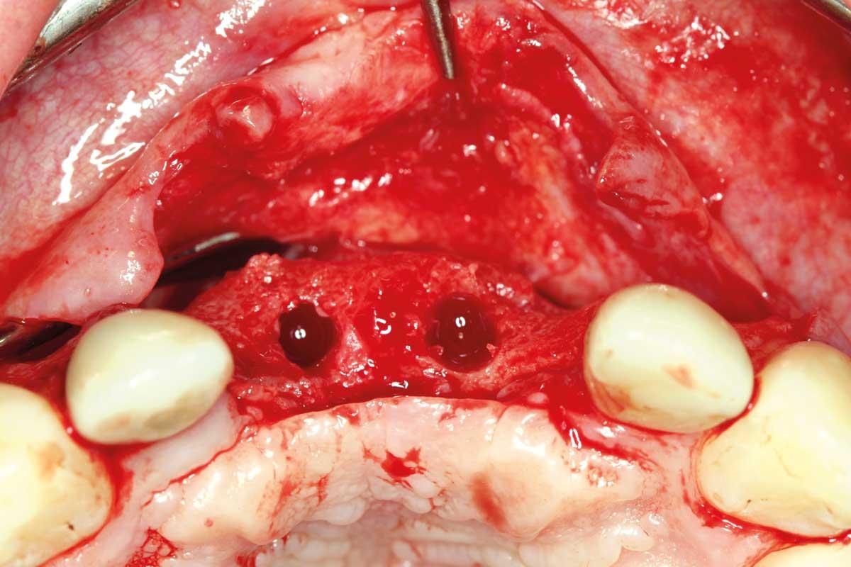 Vital tissue for implantation