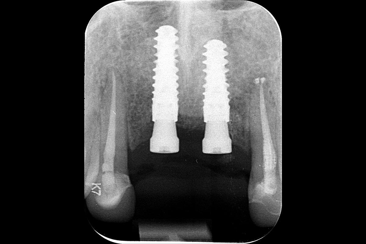 X-ray at implant installlation 6 months after augmentation