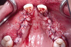 Primary wound closure