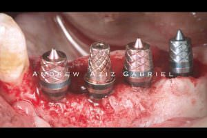 Implant placement on the contralateral site