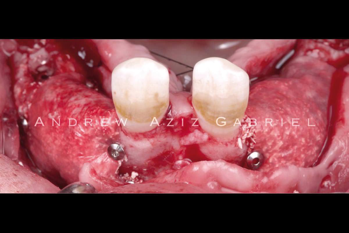 Veneering cerabone® (mixed with autologous bone from the tuberosity and the biological drilling) added after implant placement for resorption protection. Covering by Jason® membrane (stabilized by tacks)