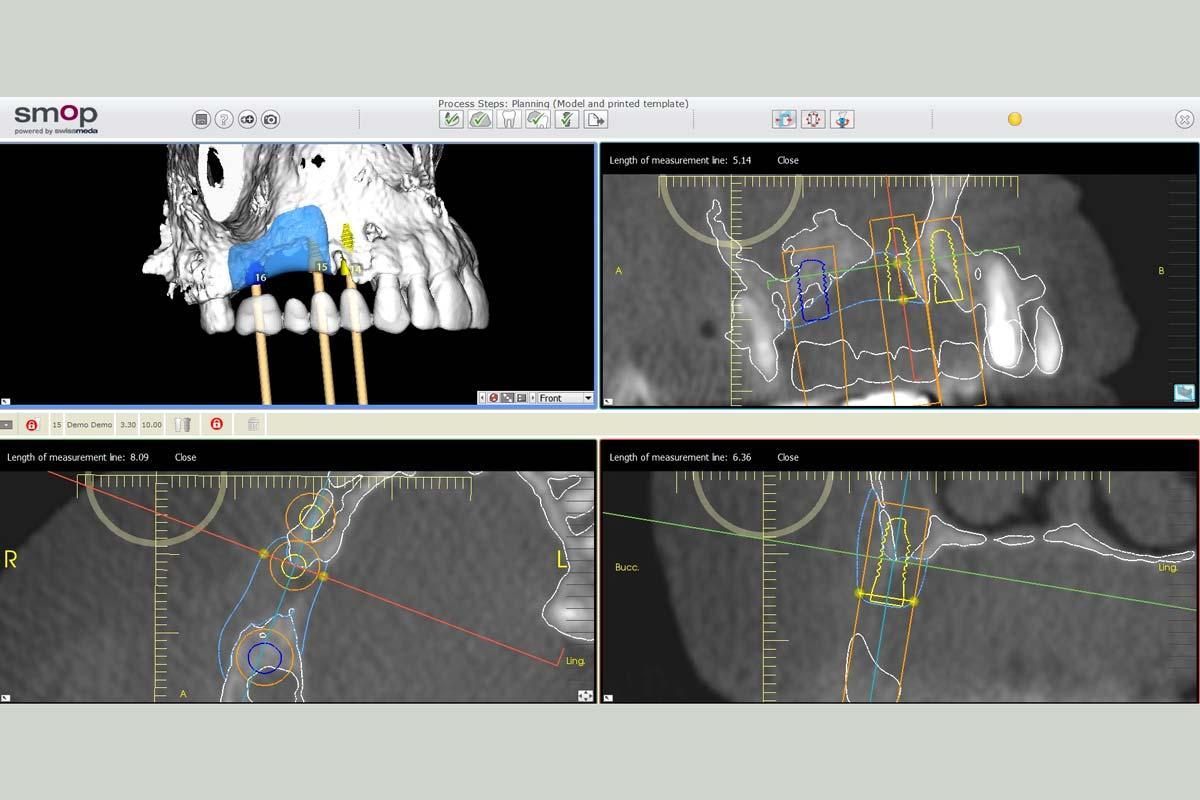 3D Reconstruction of the maxilla with maxgraft® bonebuilder – area 15