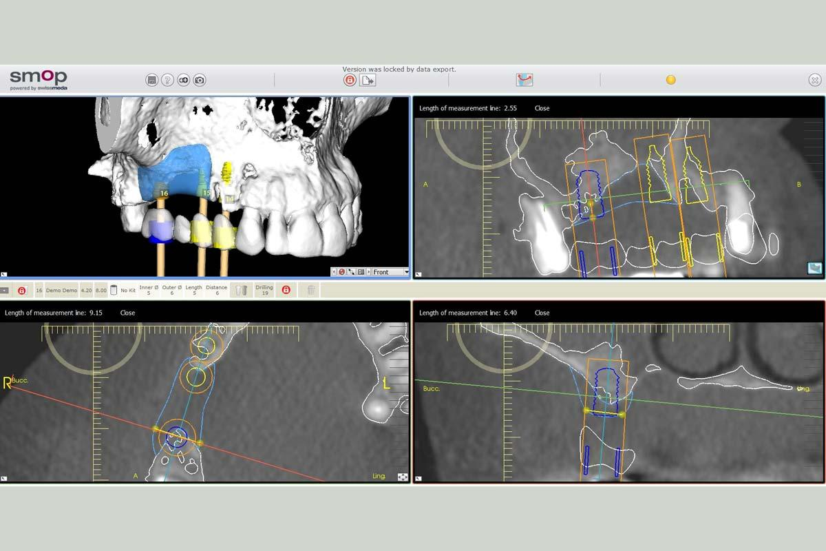 3D Reconstruction of the maxilla with maxgraft® bonebuilder – area 16