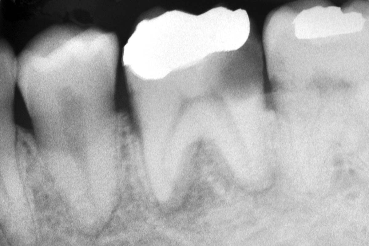 Radiographic aspect before tooth extraction